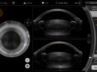 CATALYS® Precision Laser System